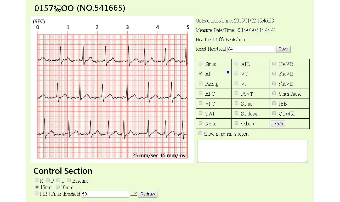 JMI - A Telesurveillance System With Automatic Electrocardiogram